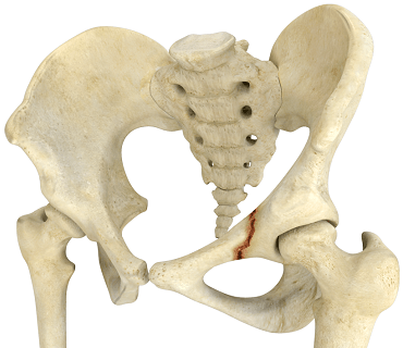 Falls and Hip Fracture